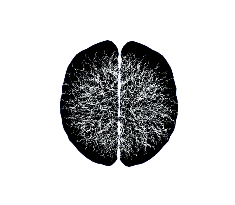 Neuronales Netzwerk 1