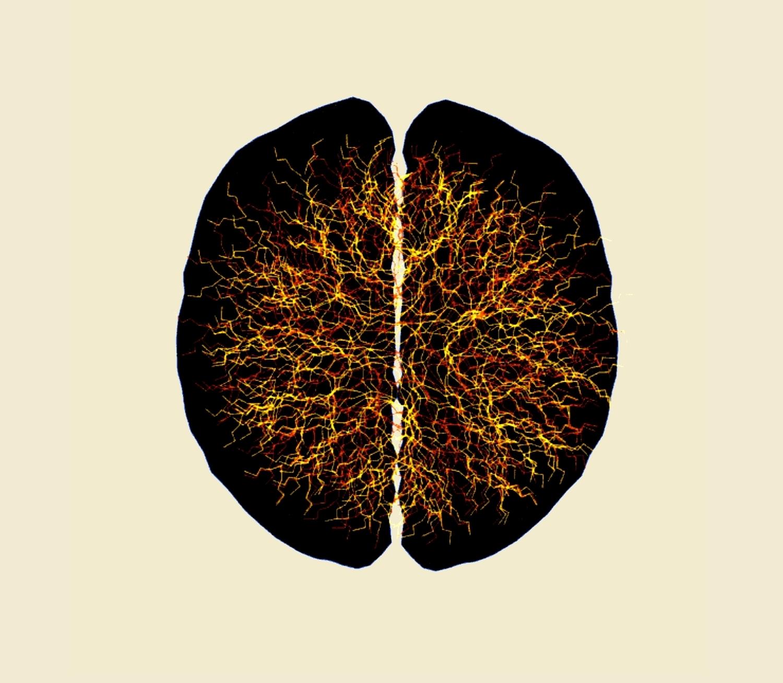 Neuronales Netzwerk 2